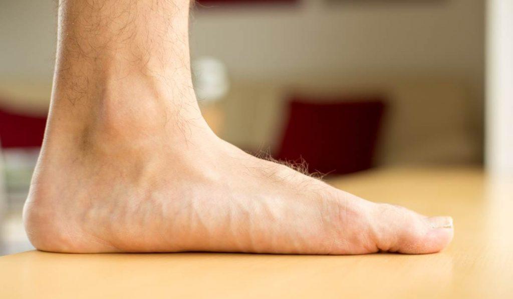 เท้าแบน